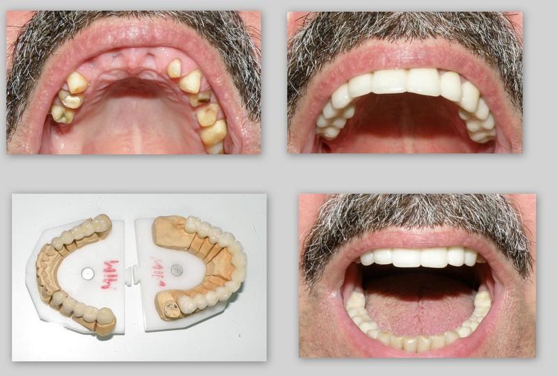 zubni-most