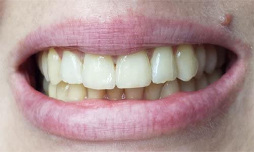 zubna-kruna