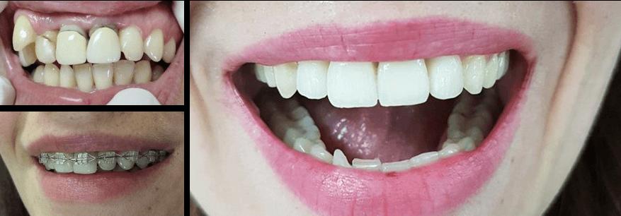 aparat-za-zube-odrasli