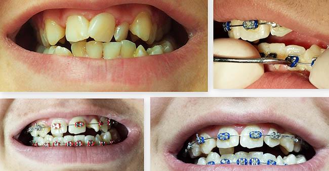 fiksni-aparatic-za-zube