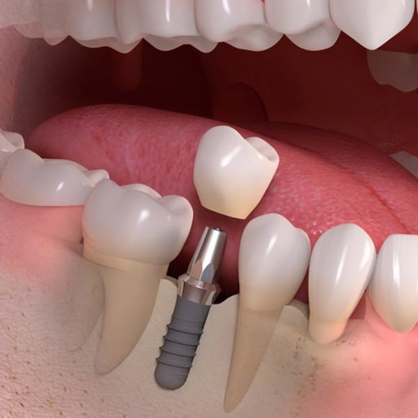 ugradnja-implantata