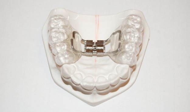 mobilni-aparatic-za-zube