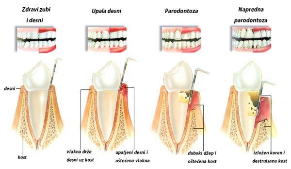 parodontoloska-terapija