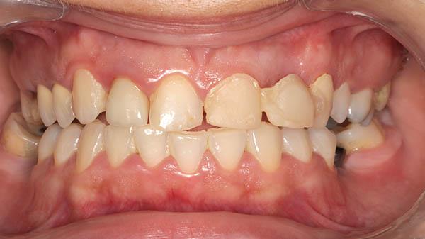 gingivotomija