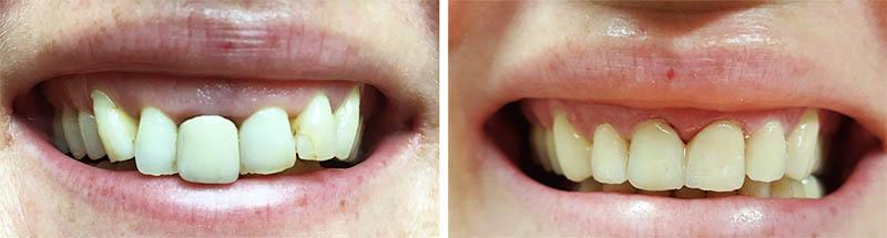 produljenje-krune-zuba