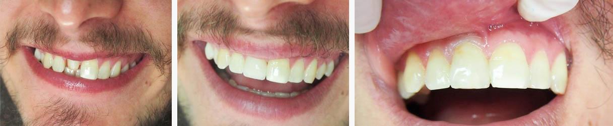 nadogradnja-zuba