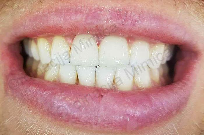 zubne-krune
