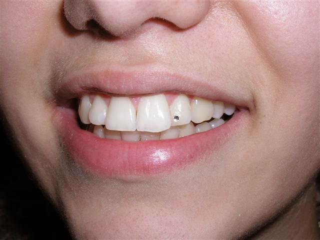 zubni-nakit