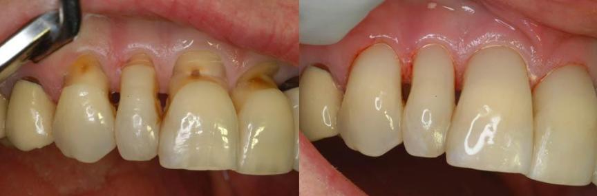 zubne lezije